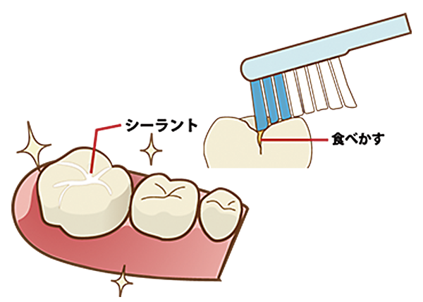 奥歯の溝にはシーラント